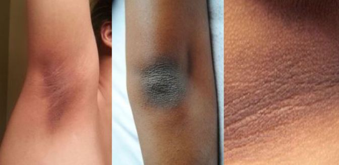 Complete-Guide-For-Removing-Dry-and-Dark-Skin-on-Your-Neck-Elbows-Knees-and-Underarms